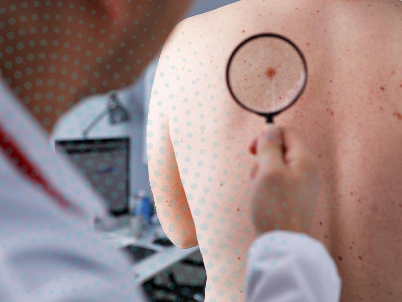Atenção aos riscos do câncer de pele