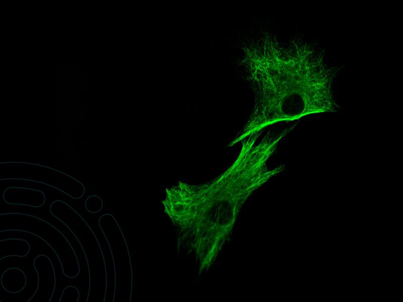 Como funciona a análise de imunofluorescência direta de pele